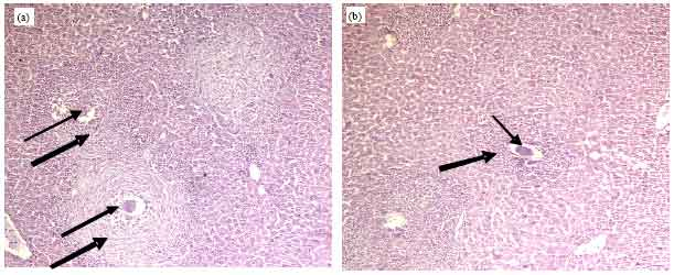 Image for - Overview on Cysteine Protease Inhibitors as Chemotherapy for Schistosomiasis    mansoni in Mice and also its Effect on the Parasitological and Immunological Profile