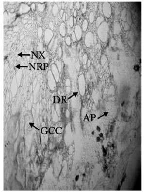 Image for - Histopathological Response of Lens culinaris Roots Towards Root-knot Nematode, Meloidogyne incognita