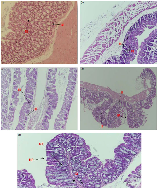 Image for - Lactobacillus rhamnosus Enhances the Immunological Antitumor Effect of 5-Fluorouracil against Colon Cancer