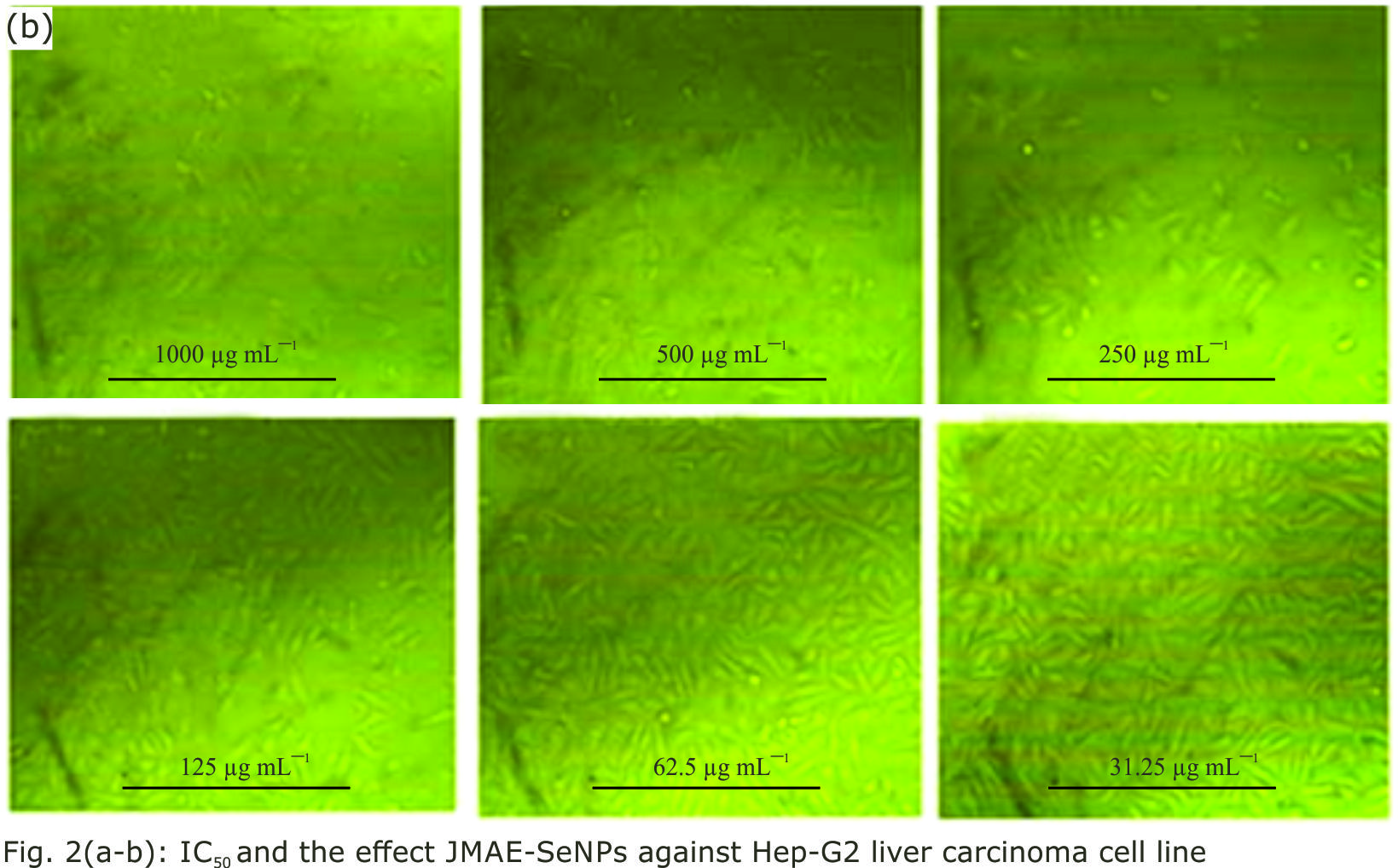 Image for - Protective Effects of Jasonia Montana-Selenium Nanoparticles Against Doxorubicin-Induced Liver Toxicity