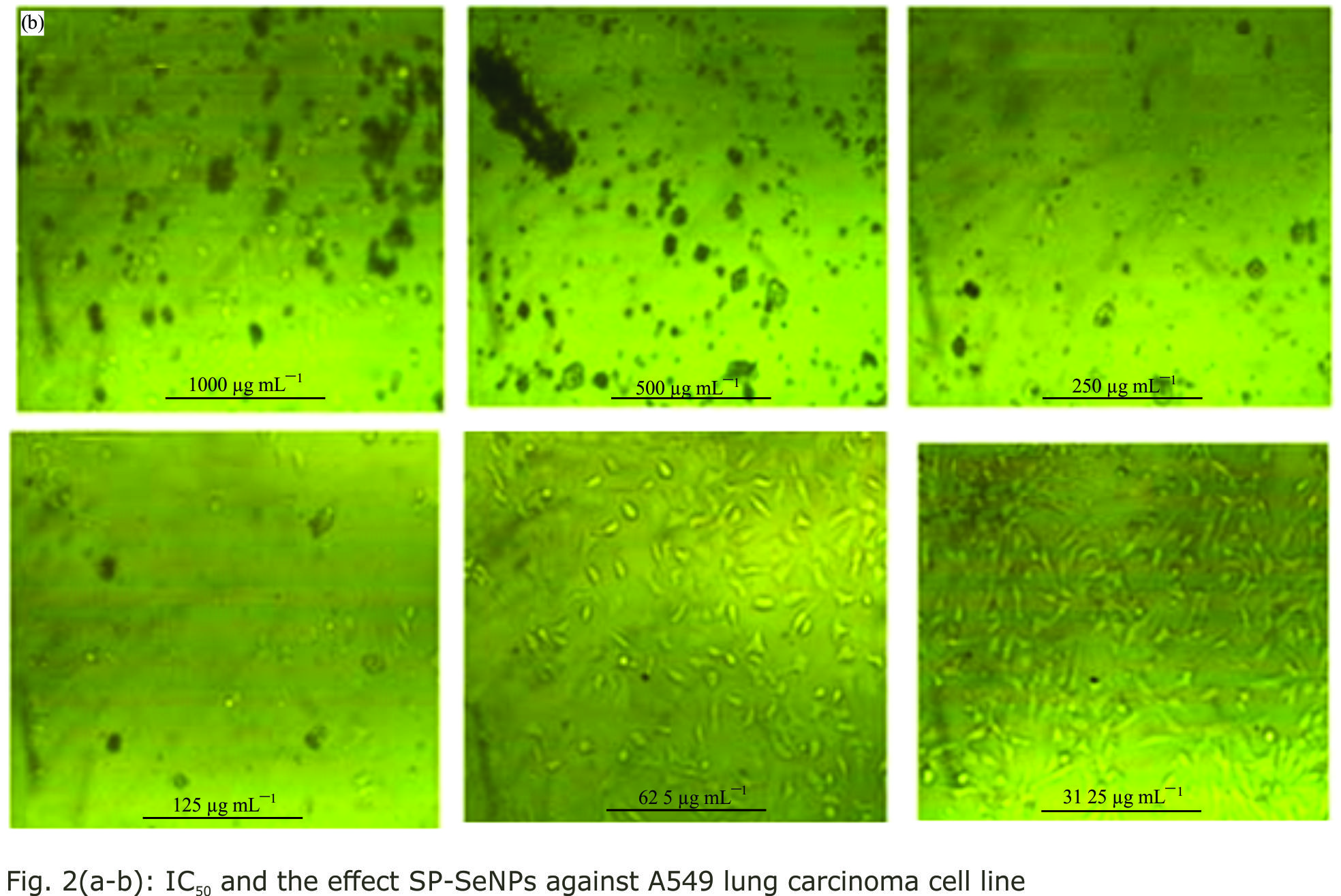 Image for - Protective Effects of Spirulina Platensis- Selenium Nanoparticles Against Nicotine Induced-Lung Toxicity
