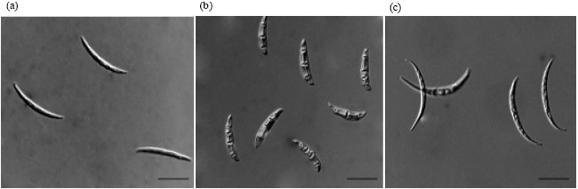 Image for - Causal Agents of Root Rot and the Effect of Vesicular-Arbuscular Mycorrhizal Fungi in Seedlings of Rhodiola rosea in Alberta, Canada