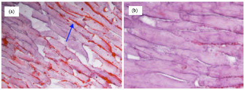 Image for - Reduction of Intracellular Lipid Accumulation, Serum Leptin and Cholesterol Levels in Broiler Fed Diet Supplemented with Powder Leaves of Phyllanthus buxifolius