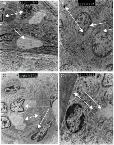 Image for - Study of Level of Inhibin B and Ultra structure of Sertoli Cells in Contra-Lateral Testis after Unilateral Blunt Testis Trauma in Rat