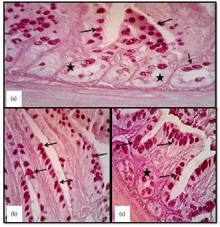 Image for - Histomorphological and Histochemical Study of the Small Intestine of the Striated Scope Owls (Otus Scors Brucei)